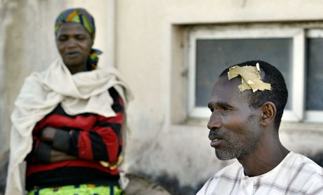 A citizen suffering from a head wound after deadly ethnic and religious rioting, in Jos, Nigeria in 2008.