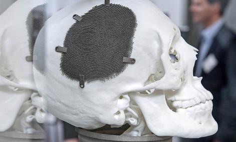 A 3D print of a fully porous titanium grade five cranial implant for a patient.